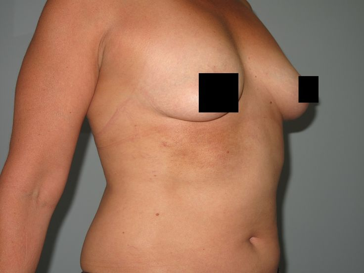 Breast autogolous fat transfer
