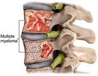 MIELOMA MÚLTIPLO | Sintomas e tratamento ~ PORTAL PCD ON-LINE