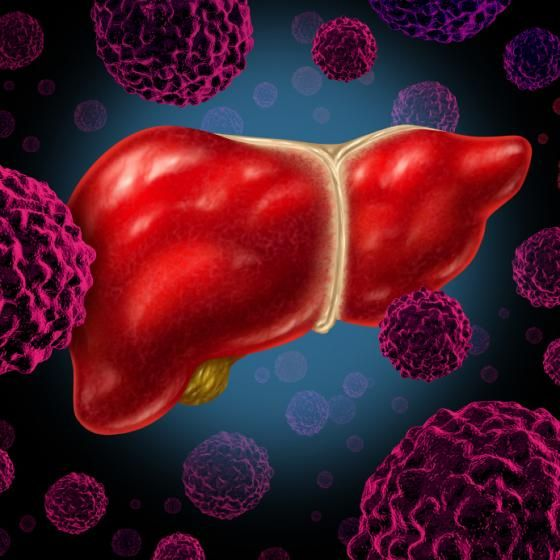 ESMO GI provides new insights into HCC and metastatic liver cancer - http://www.freshcancernews.com/esmo-gi-provides-new-insights-into-hcc-and-metastatic-liver-cancer/