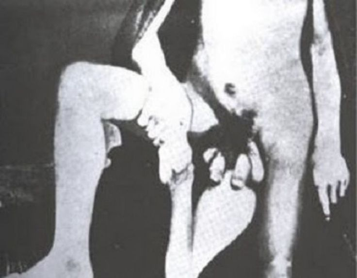 """""""Juan Baptista dos Santos, born in 1843 in Portugal, was known across Europe as """"the 3-legged Man."""" While that may sound like innuendo, it's not; Santos actually had three legs. In addition to his three legs he also happened to have two penises and three or four testicles.""""  http://www.cracked.com/article_16624_tainted-love-historys-7-most-terrifying-romances.html"""
