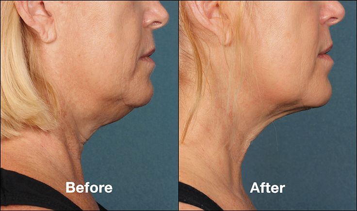 Double Chin Treatment. Kybella is a new injectable alternative treatment to chin liposuction. #ChinLipo #DoubleChin