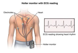 Holter Monitor | hopkidsmedicine.org