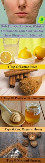 Tighten up your skin with my favorite DIY, homemade, 4-step face mask! The Instant Face Lift Soufflé: 1 egg white (tightens, lifts, and firms) 1 lemon or lime wedge, squeezed (brightens, balances) 1 spoonful of honey (moisturizes, hydrates) Directions: In a little bowl, whisk the above ingredients together until it becomes a whipped, foamy broth. …