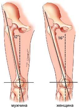 Разрыв передней крестообразной связки (ПКС)   Спортивная медицина