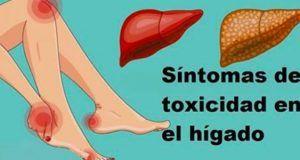 Signos de que tu hígado sobrecargado de toxinas que te está haciendo engordar