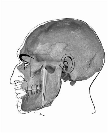 Reconstitution faciale par informatique d'un mechtoïde d'Algérie (reconstitution J-N. Vignal, D. Hadjouis)