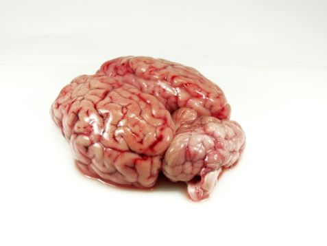 "Discovery Health ""Brain Pictures""  The human brain isn't the prettiest of sights. It's made of approximately 100 billion nerve cells called neurons. The cortex, or outer covering, can be seen here, and is folded to allow the large surface area of the brain to fit in the skull.  Hemera/Thinkstock"