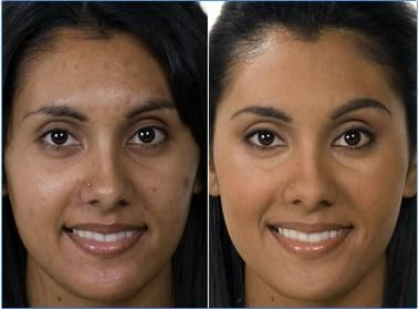 how to get rid of blemishes on face naturally