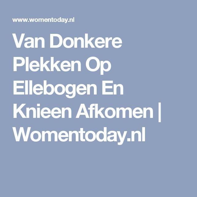 Van Donkere Plekken Op Ellebogen En Knieen Afkomen | Womentoday.nl