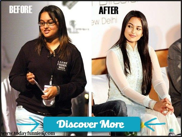 This Is Very Funny Picture Of Bollywood Female Celebrity Sonakshi Sinha. In This Funny Picture You Can See Sonakshi Journey From Fat To Fit. There Are Two Picture Of Sonakshi…1st Is Before And 2nd Is After. Picture 1 Is Before Entering In Bollywood And Picture 2 Is After Entering In Bollywood. You Can Feel The Difference That Sonakshi Sinha Lose Her Weight After Entering In Indian Film Industry. #fitnessbeforeandafterpictures, #weightlossbeforeandafterpictures, #beforeandafterweightlos...