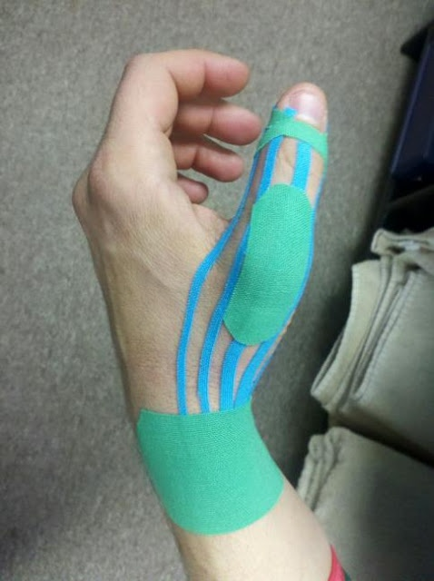 PHYSIO PICS: Kinesiotaping for Gamekeeper's Thumb with DeQuervain's Tenosynovitis