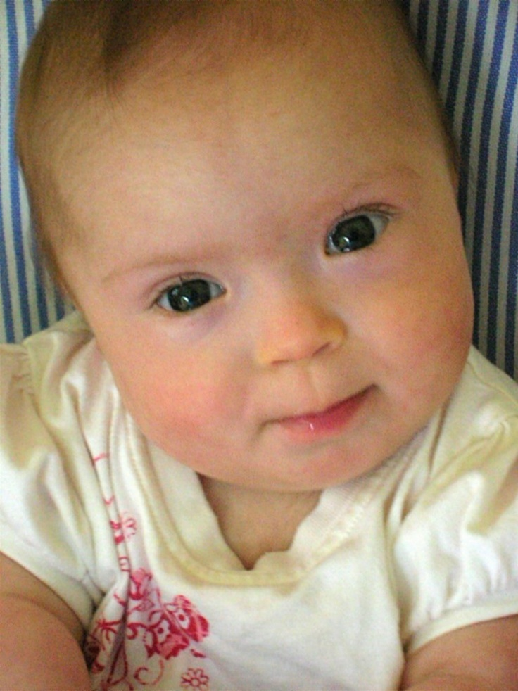 Downs Side Up: What to Say When a Baby is Born with Down's Syndrome