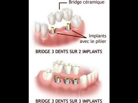 MES IMPLANTS DENTAIRES + PRIX