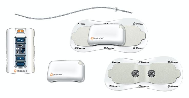Bioness Announces First Commercial Procedure of StimRouter™ Neuromodulation System