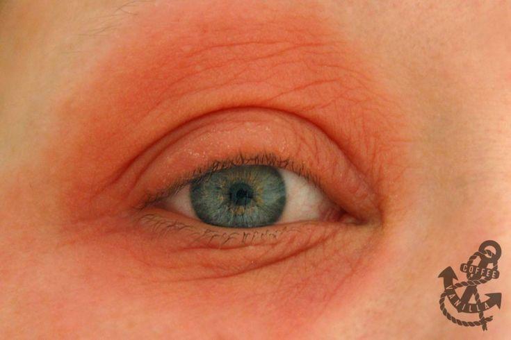 Allergic Reaction - Itchy Red Swollen Eyes and Dry Skin. Аллергические реакции на химические компоненты в косметике.