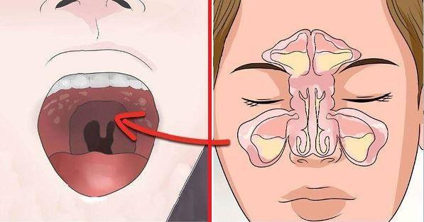 Si vous avez toujours les sinus congestionnés, des maux de tête constant, vérifiez ceci