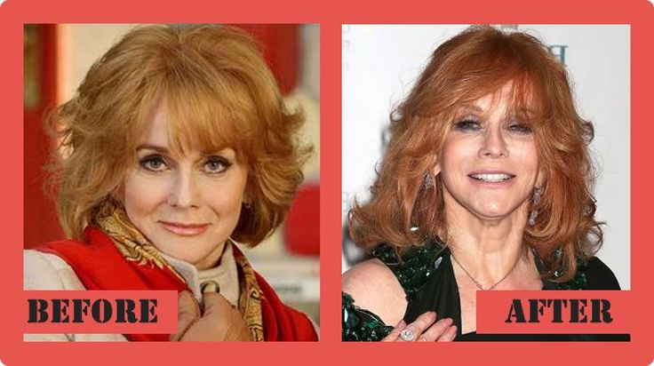 Ann Margret Plastic Surgery Before And After Ann Margret