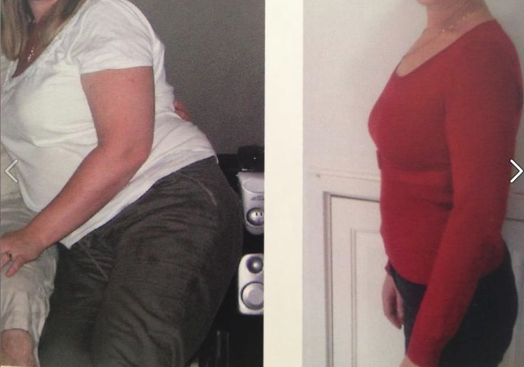 Before and after; total loss 96.5 cms using HYPOXI L250 cycle, 36 sessions (age: 35)