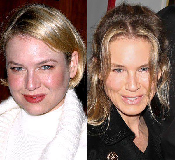 Before and After Plastic Surgery: Renee Zellweger
