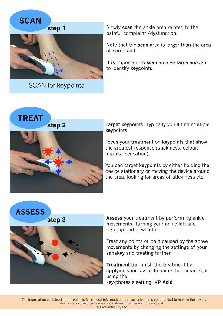 high ankle sprain exercises pdf