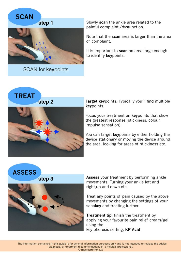 ankle sprain treatment with sanakey.   download it now!