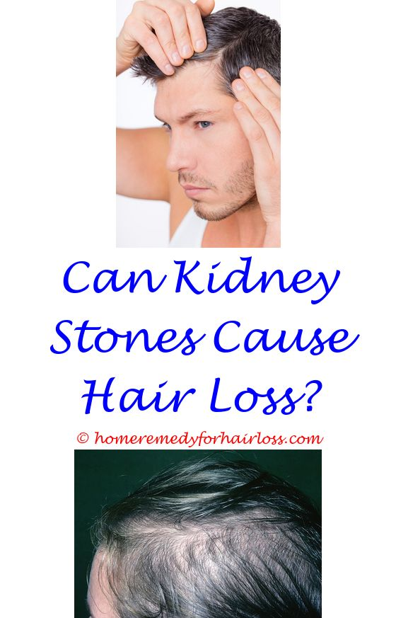 hgh helps hair loss - glucosamine sulphate hair loss.hair loss tips in tamil does black currant seed oil help with hair loss how to control hair loss in tamil 6072076010