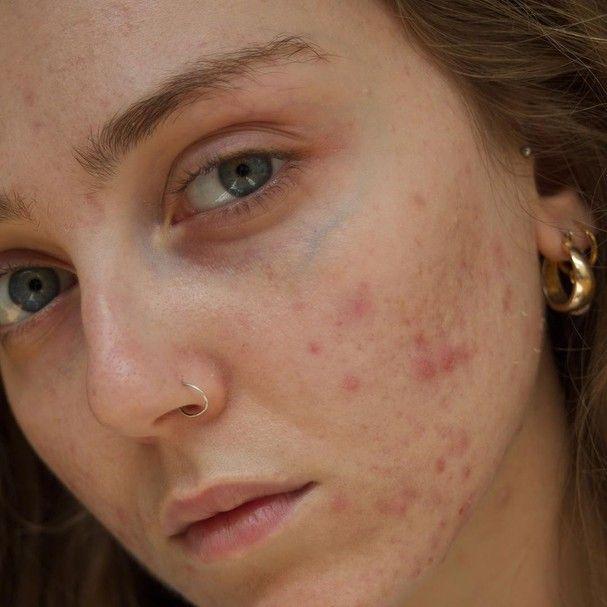 Lou Northcote (Foto: Reprodução / Instagram) Bare Beauty, Real Beauty, Girl With Acne, Youre Like Really Pretty, Pele Natural, Face Photo, Makes You Beautiful, Body Love, Acne Skin