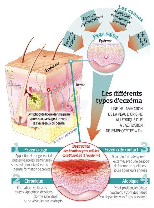 L'eczéma ou dermatite atopique est l'expression cutanée de l'atopie, pathologie qui peut se manifester également par l'asthme, larhinite,la conjonctivite allergique et l'allergie alimentaire. C'e...