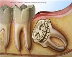 ¿Quién fue el primer #dentista? ¿Quién invento la #pastadedientes? te lo contamos aquí #humor #curiosidad #dentista