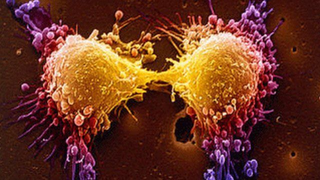 Black seed oil extract makes cancer cells self-destruct