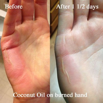 Coconut Oil for Burns: Real Me Monday