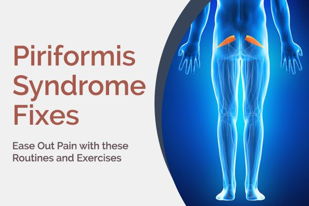 The right piriformis syndrome treatment starts with a proper first aid and gentle exercises. Learn how you can ease symptoms of piriformis syndrome at home.