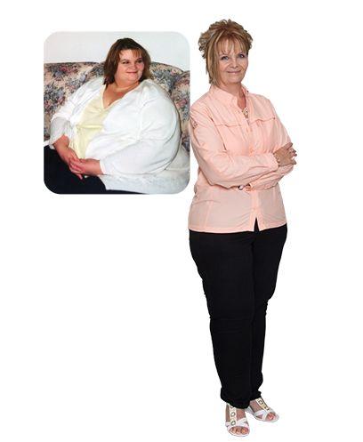 Weight loss surgery palmdale ca photo 2