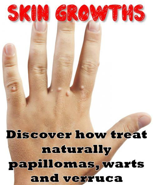 Skin growths. Discover how treat naturally papillomas, warts and verruca