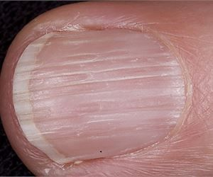 10 Disturbing Things Your Nails Reveal About Your Health