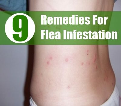 9 Best Home Remedies For Flea Infestation