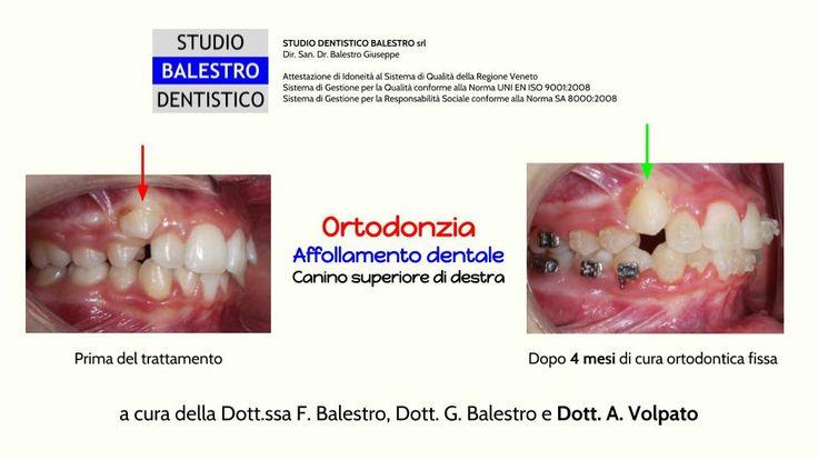 Casi clinici ortodontici Affollamento dentale http://www.studiodentisticobalestro.com/2017/08/affollamento-dentale.html