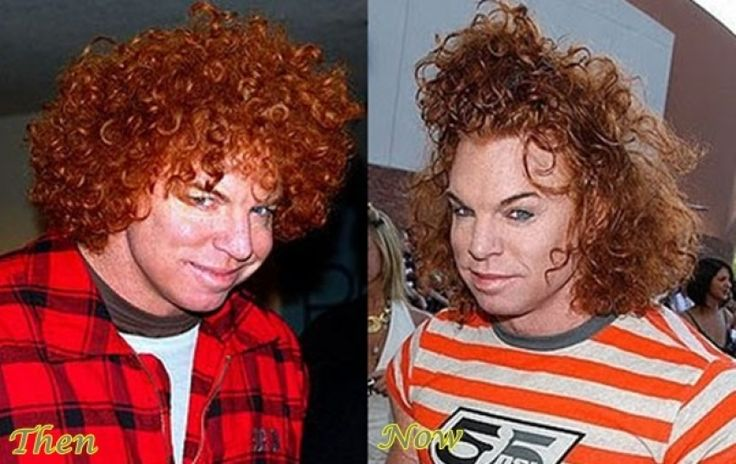 Carrot Top Before Plastic Surgery carrot top plastic surgery carrot top before and after, Carrot Top Before Plastic Surgery