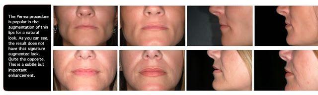 Увеличение Губ)) Ещё один стимул к изменению толщины верхней или нижней губы также подробно обрисован в физиогномике: оказывается, окружающие судят по строению и пропорциям губ о проявлении в человеке мужественности или женственности. Полная верхняя губа говорит о чувственности и склонности к повышенной эмоциональности, о восприимчивости и экспрессии в реакциях, то есть как раз о тех чертах личности, которые принято относить к женским. Неспроста мужчины, имеющие полную верхнюю губу, часто…