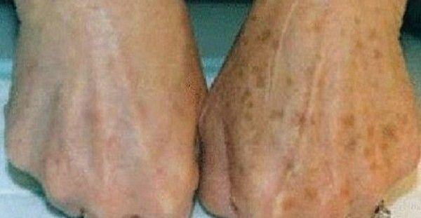 Υγεία - Οι κηλίδες στα χέρια συνήθως εμφανίζονται με την ηλικία. Όμως υπάρχουν και άλλοι παράγοντες που μπορούν να συνεισφέρουν στην εμφάνισή τους, όπως ο ήλιος. Σ