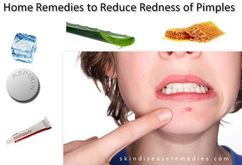 Pimples on face, forehead or on any body part starts with redness, swelling and most of the times comes with pain. Thesebulging red pimples spoils overall look of your face and you may feel depressed and isolated. With simple home remedies you can reduce redness and swelling of pimples right away. So, next time when …