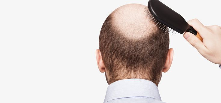 Many have suffered from hair loss and for many different reasons. This article is meant for you if you suffer from dht hair loss! Keeping reading to find why it happens and how to stop it.
