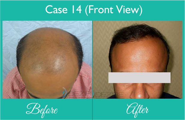 Hair Restoration done at Dezire Clinic Pune. Visit our website to know details of Hair Restoration Cosmetic Surgery in India, Cost of Hair Restoration. Call on 9222122122 for free consultation.