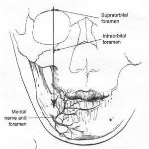 13 best Nerve blocks to the face images on Pinterest