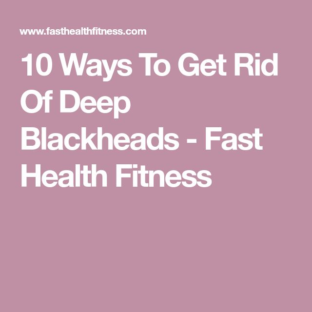 10Ways To Get Rid Of Deep Blackheads - Fast Health Fitness