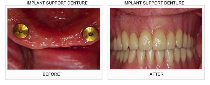 dental clinic in bangalore -Dental Implants  - Confident Dental Care provides Dental implants treatment at affordable costs and also offer anchor for dental prostheses, such as dental crowns, dental bridges or dentures.