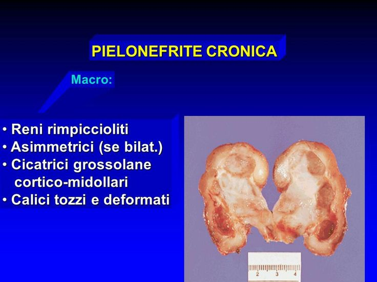http://slideplayer.it/slide/993022/ pielonefrite cronica, macro