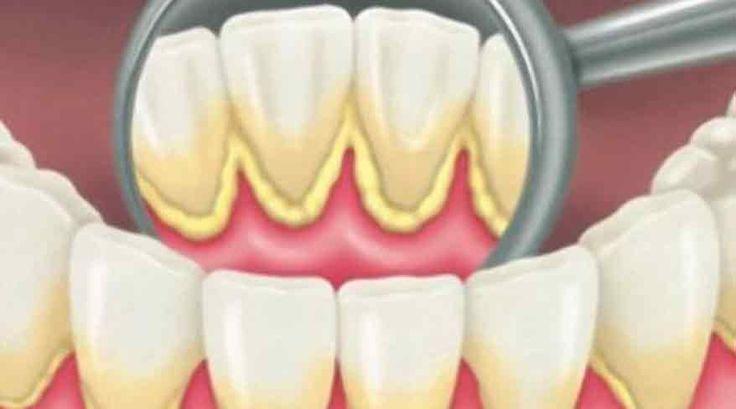 Igiena orală, influențează foarte mult sănătatea generală a organismului, așa că este foarte important să ne îngrijim de curățarea cavității bucale. De asemenea, trebuie să eliminăm o dată la ceva timp tartrul și să prevenim formarea infecțiilor. Există totuși o metodă naturală, prin care putem menține sănătatea cavității bucale, fără a fi nevoie să apelăm …