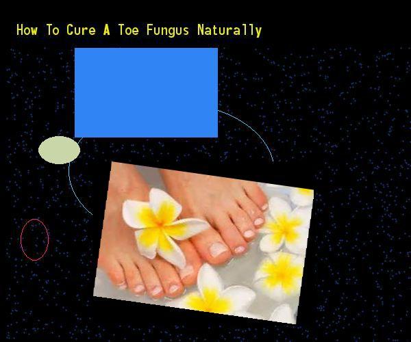 How to cure a toe fungus naturally - Nail Fungus Remedy. You have nothing to lose! Visit Site Now