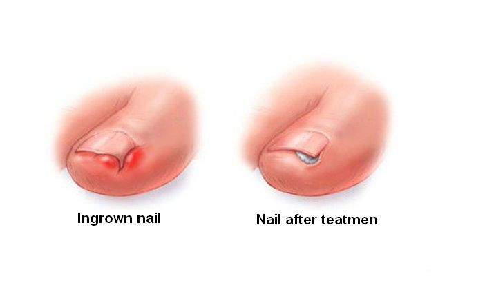 How to treat ingrown nail on your feet in home conditions!  #medicine #MedicareForAll #sportsmed #PhysicalTherapy #herbal #HomeRemedies #diet #recipes #exercise #nutrition #sportmedicine #physicaltherapy #herbalife #homeremedies #recipe #nutritionist